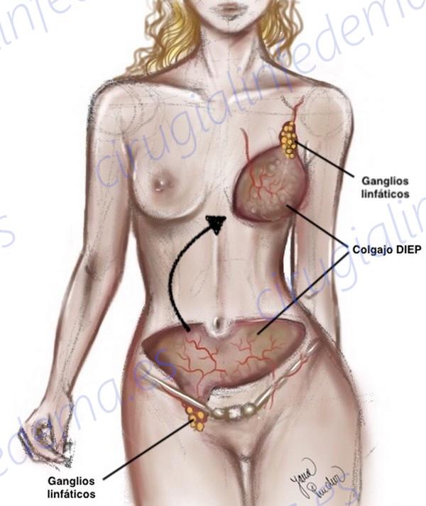 Diagrama de ejemplo de linfedema asociado al cáncer de mama