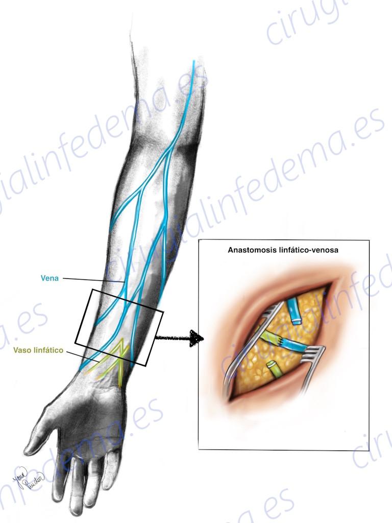 Técnica quirúrgica en tratamiento de Linfedema